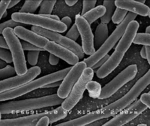 Photo: EscherichiaColi NIAID, NIH, Public Domain
